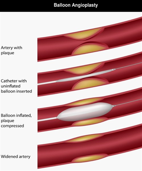 3-a-Patients-ACS-Baloon angioplasty-Black-Investigations