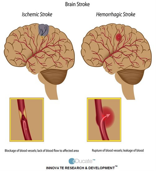 2-Lightbox-Comparison of ischemic and hemorrhagic stroke-Definition