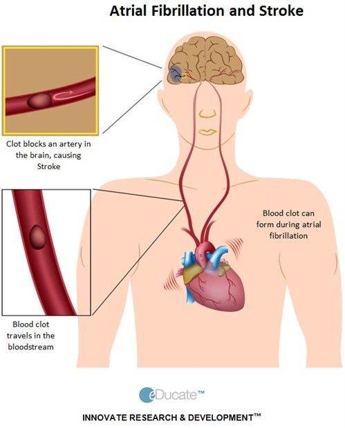 2-Patient-TIA-Treatment-AF and stroke