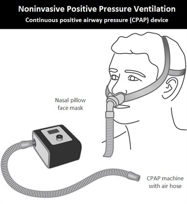 1-Image-CPAP device-Patient