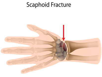 3-Image-OP-Definitin and causes-Scaphoid bone