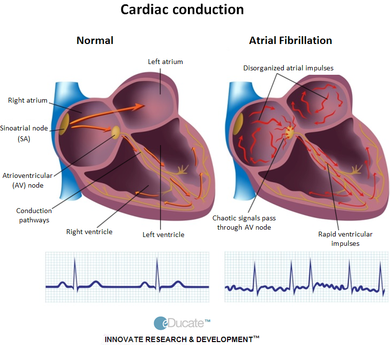 Risk factors for atrial fibrillation recurrence a literature review