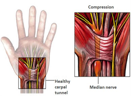 1-Image-CTS-Definition-Healthy carpal tunnel