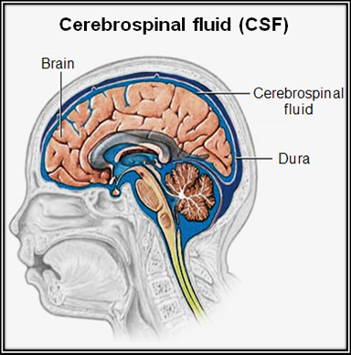 1-Image-Cerebrospinal fluid-Definition-Patient