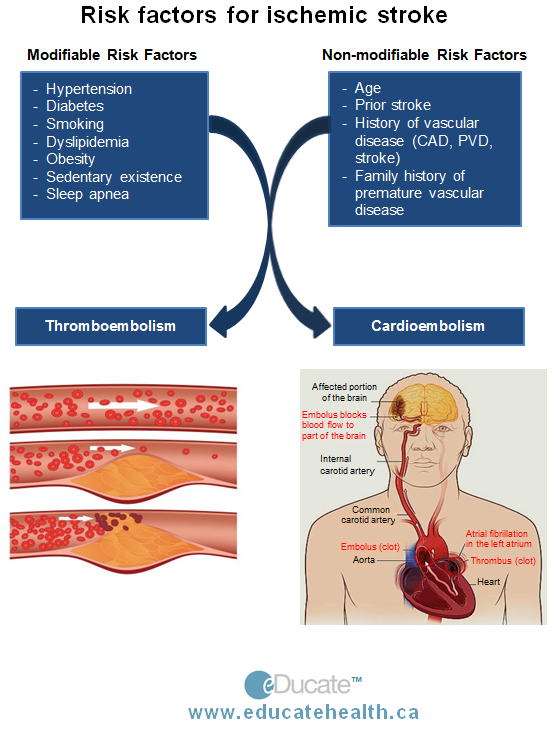 stroke pathophysiology Learn about the link between diabetes, heart disease and stroke in adults with diabetes, the most common causes of death are heart disease and stroke.