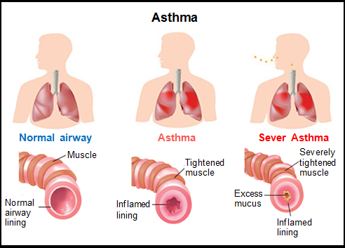 a clinical description of asthma and its prevalence Following a brief discussion about the definition of asthma and the identification of affected individuals, studies of asthma prevalence are reviewed the definition, diagnosis, and treatment of asthma are discussed in detail elsewhere.